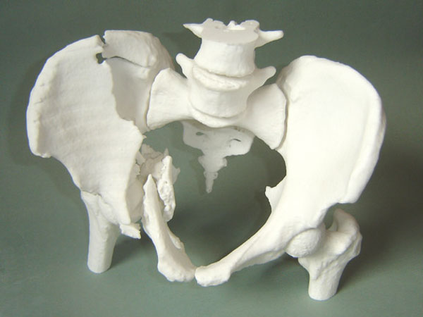 3D printed model of a damaged pelvic bone from CT scan
