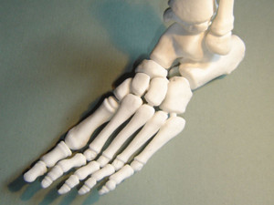 3D printed foot bones from CT scan